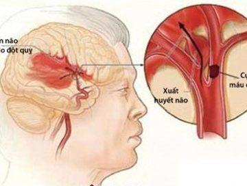 Đột quỵ não: Cần xử trí sớm và đúng cách